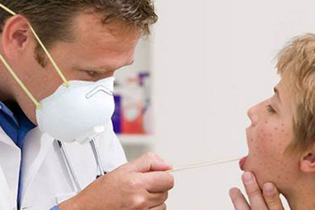measles Romania